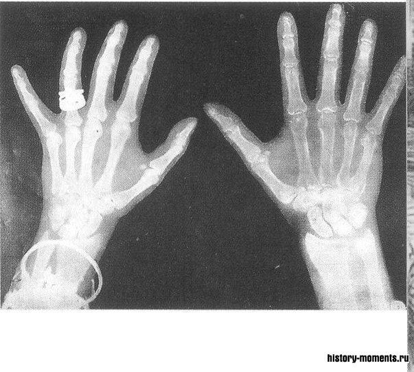 Руки герцога и герцогини Кентских одними из первых попали под рентген (1896).