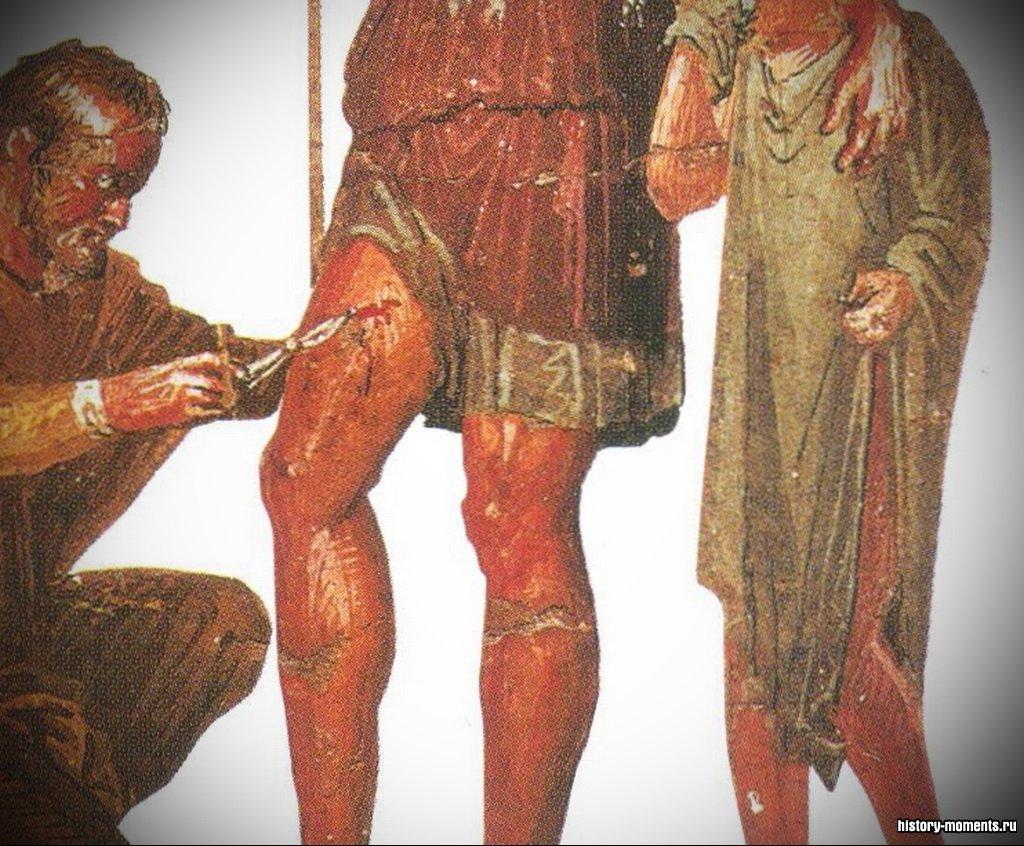 На этой фреске врач лечит героя Энея.